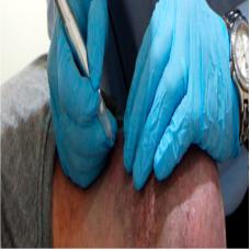 Micropigmentação Paramédica Cicatrizes