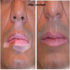 Micropigmentação Paramédica  Vitiligo
