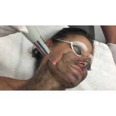 Curso Despigmentação Caneta Laser Piccosegundos EAD