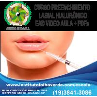 Curso Preenchimento Labial Hialurônico EAD